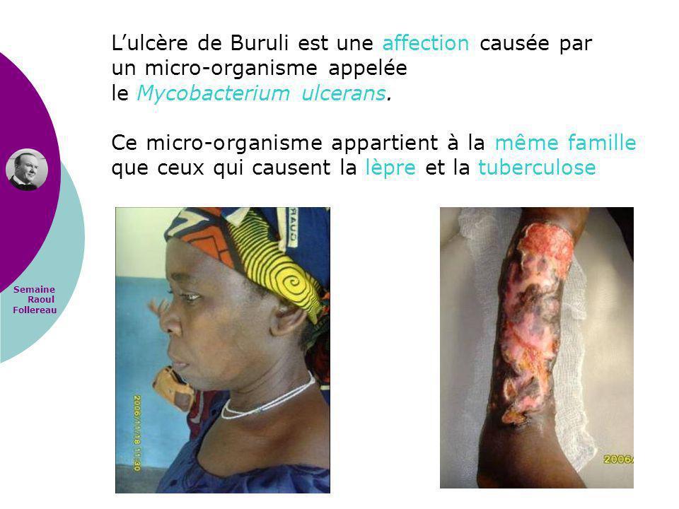 L'ulcère de Buruli est une affection causée par un micro-organisme appelée le Mycobacterium ulcerans.