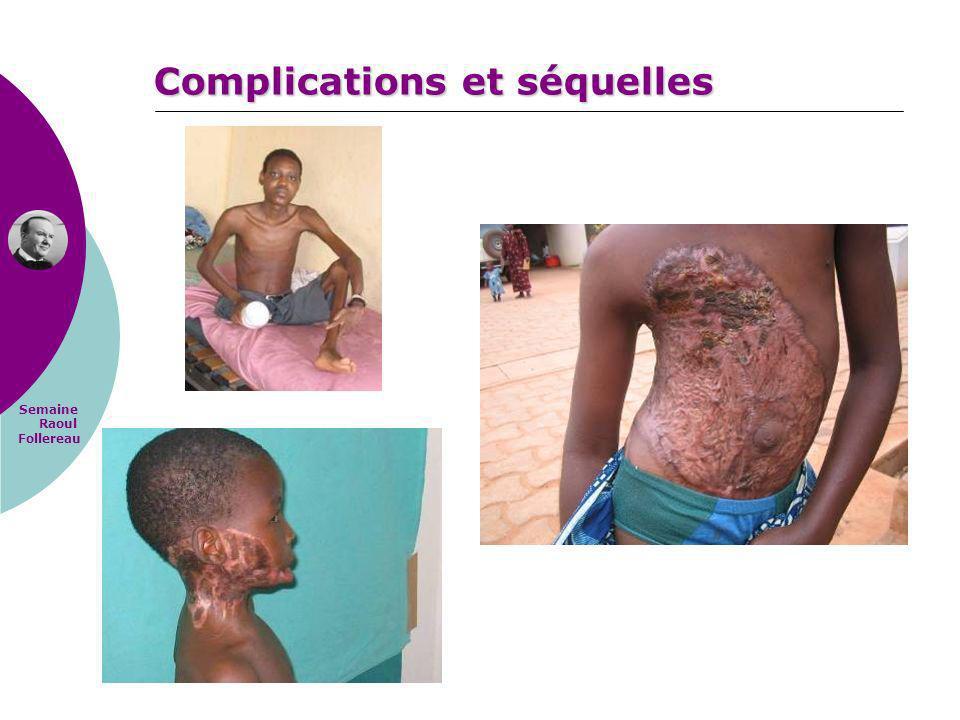 Complications et séquelles