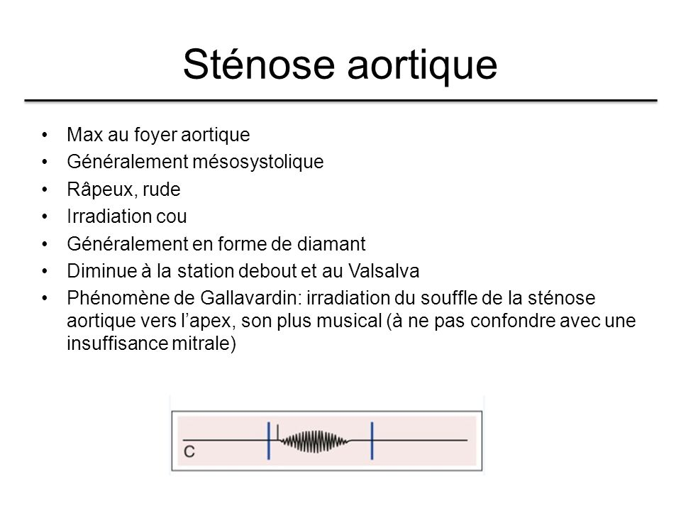Sténose aortique Max au foyer aortique Généralement mésosystolique