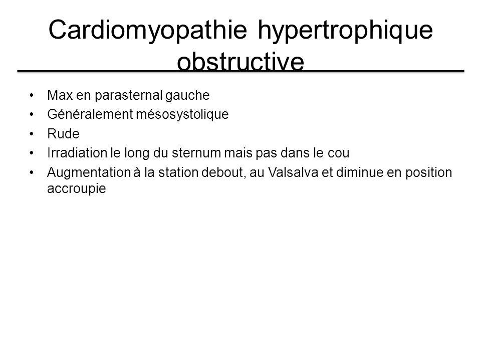 Cardiomyopathie hypertrophique obstructive