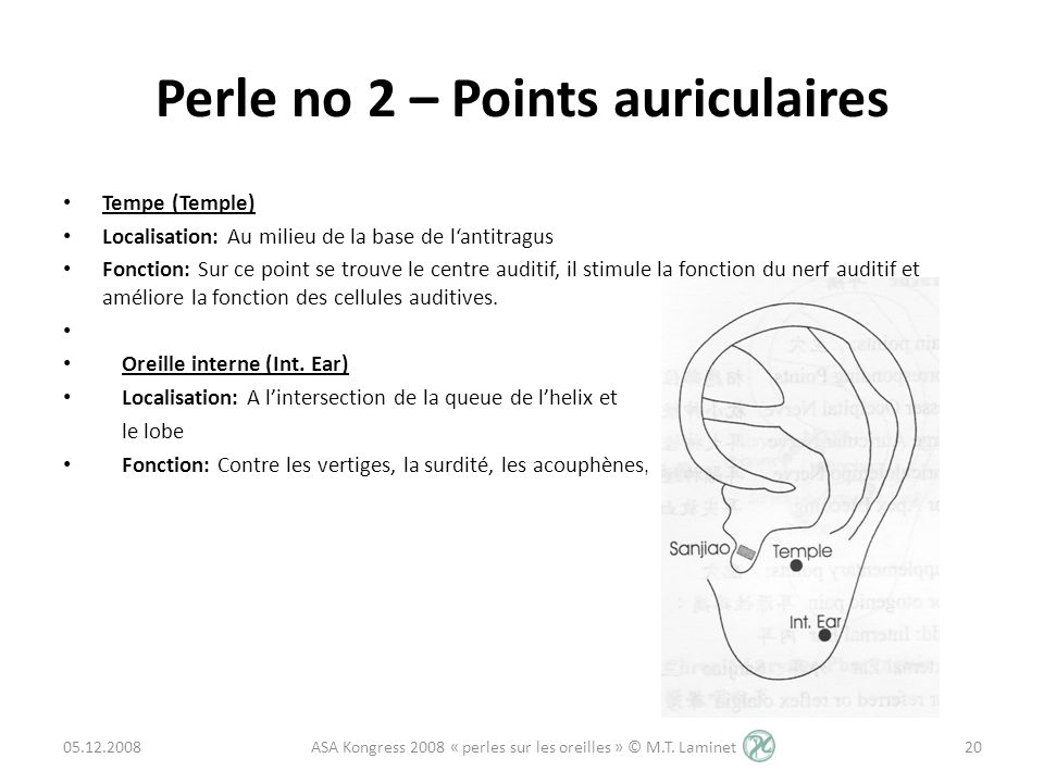Perle no 2 – Points auriculaires