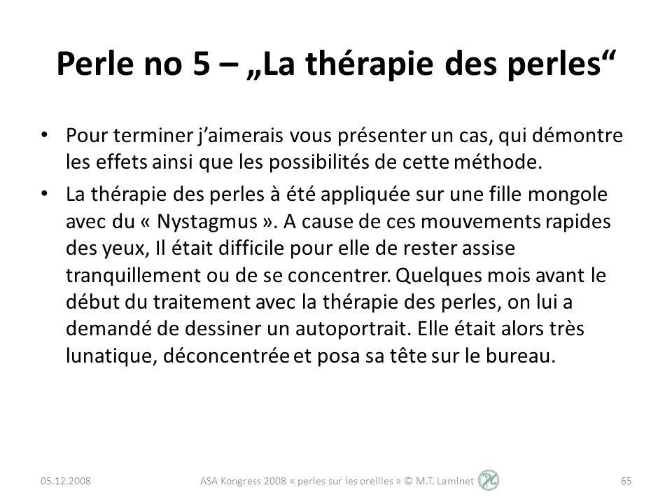 "Perle no 5 – ""La thérapie des perles"