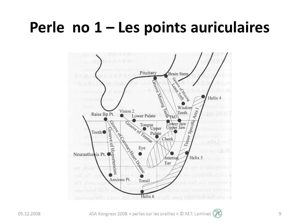 Perle no 1 – Les points auriculaires