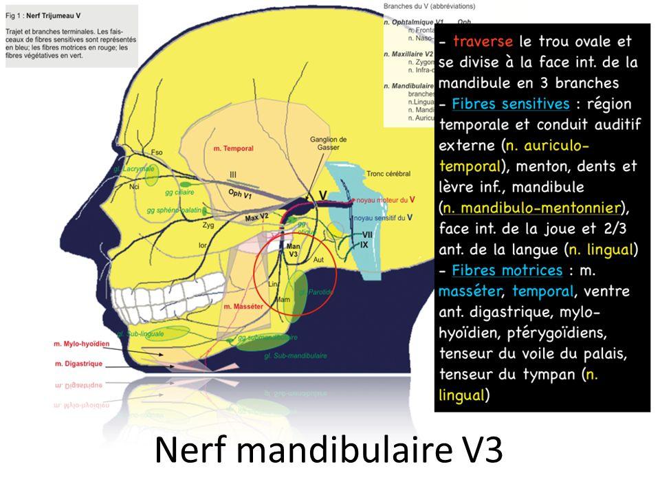 Nerf mandibulaire V3
