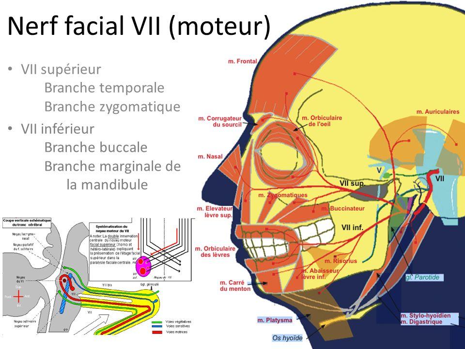Nerf facial VII (moteur)