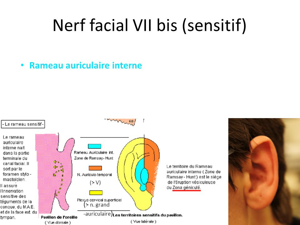 Nerf facial VII bis (sensitif)