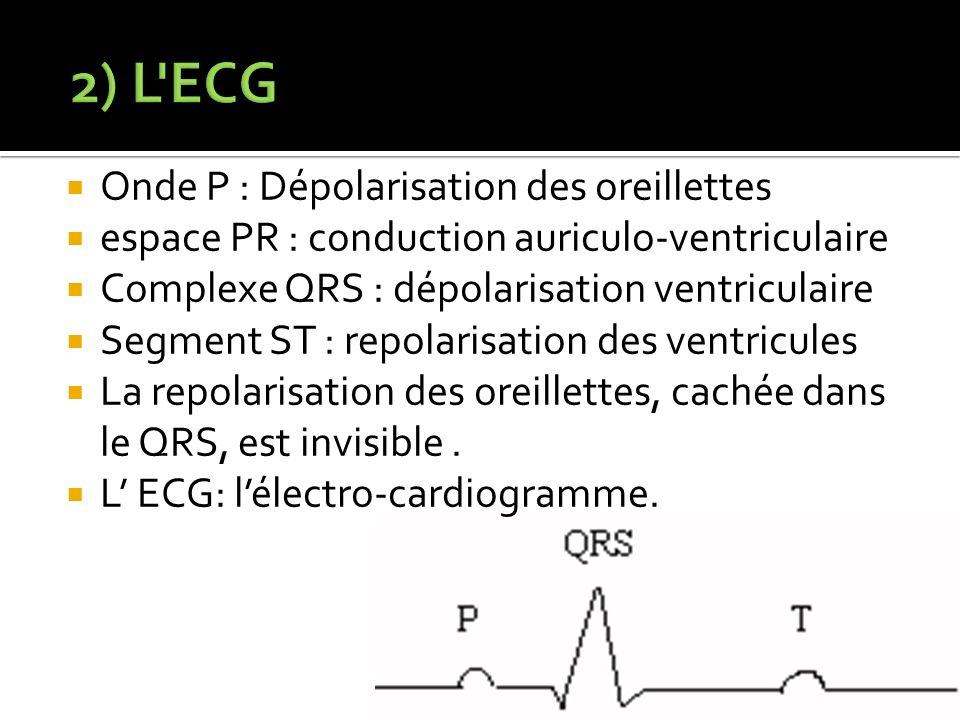 2) L ECG Onde P : Dépolarisation des oreillettes