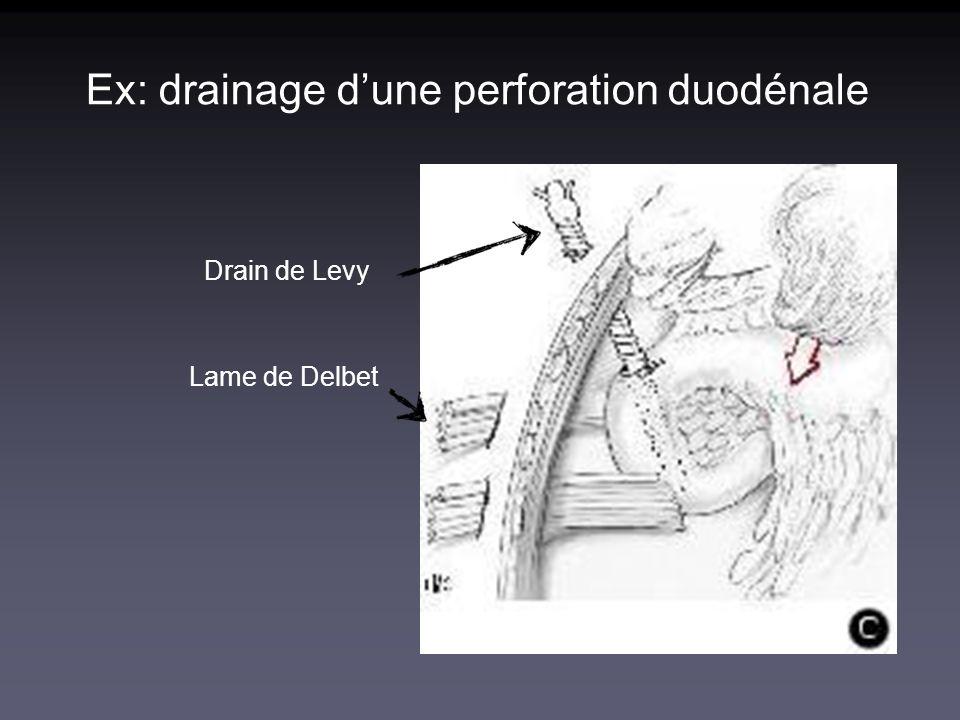 Ex: drainage d'une perforation duodénale
