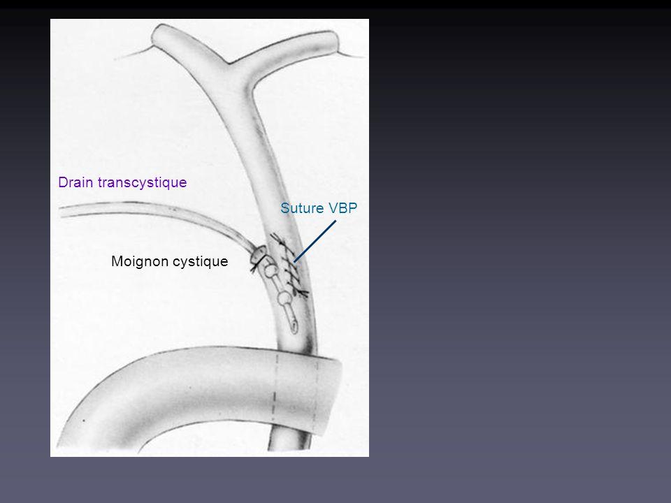 Drain transcystique Suture VBP Moignon cystique