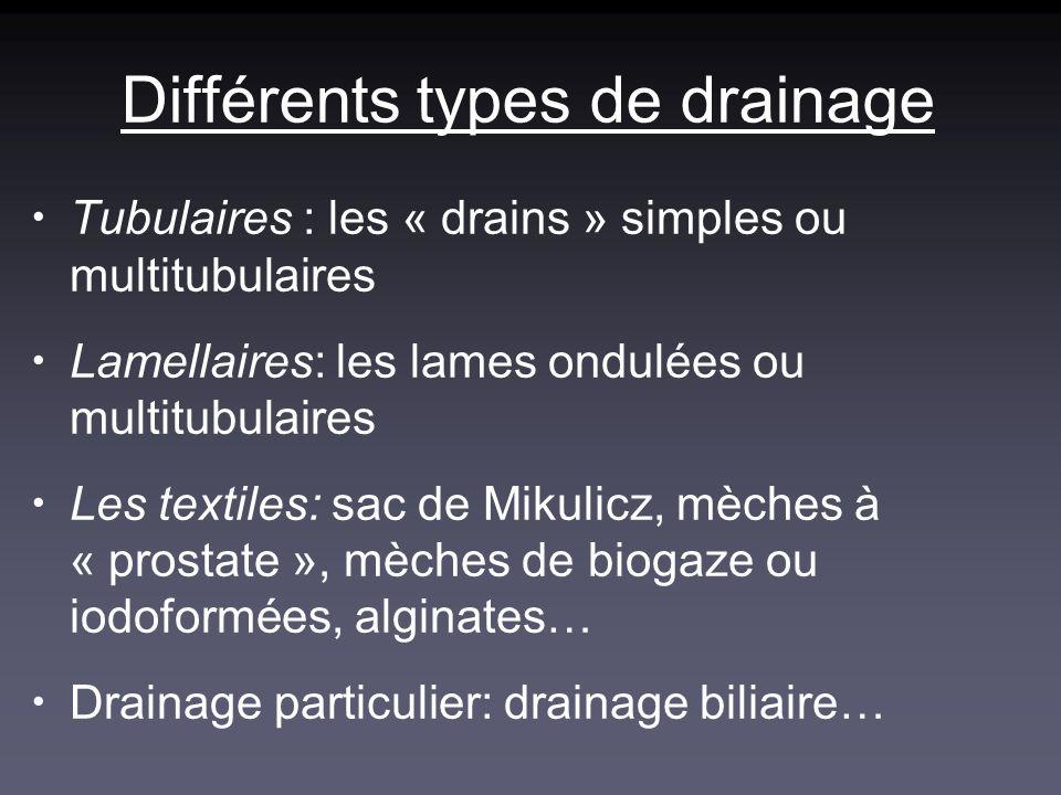 Différents types de drainage