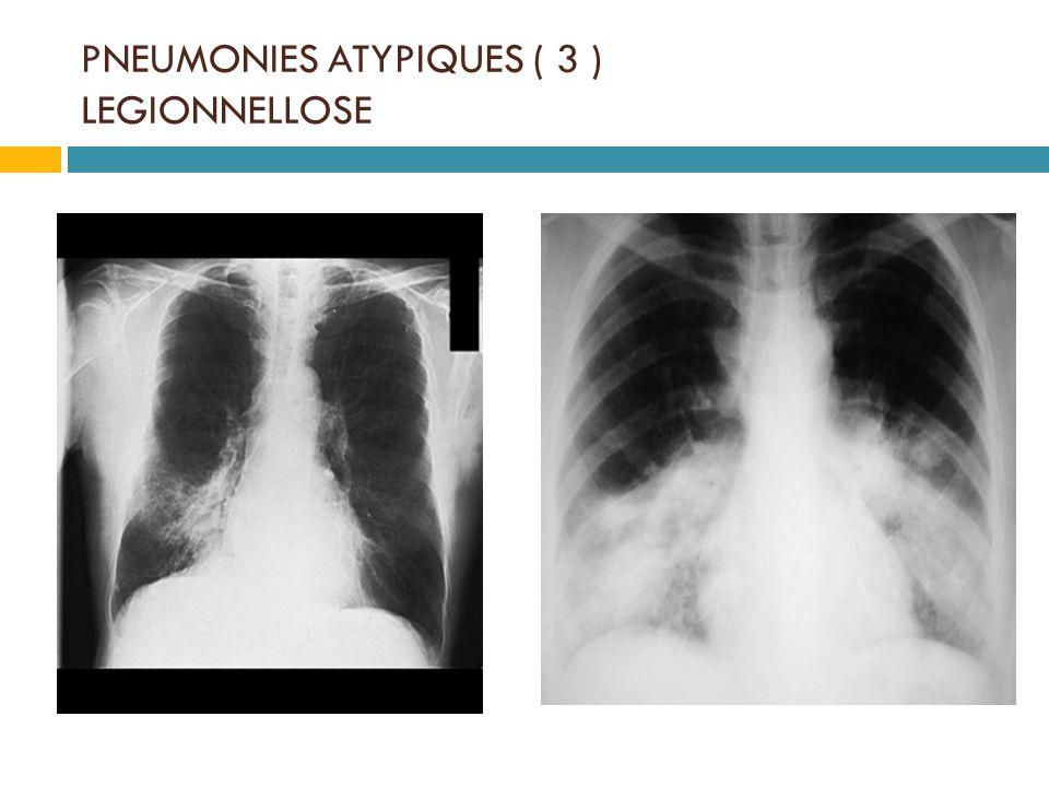 PNEUMONIES ATYPIQUES ( 3 ) LEGIONNELLOSE
