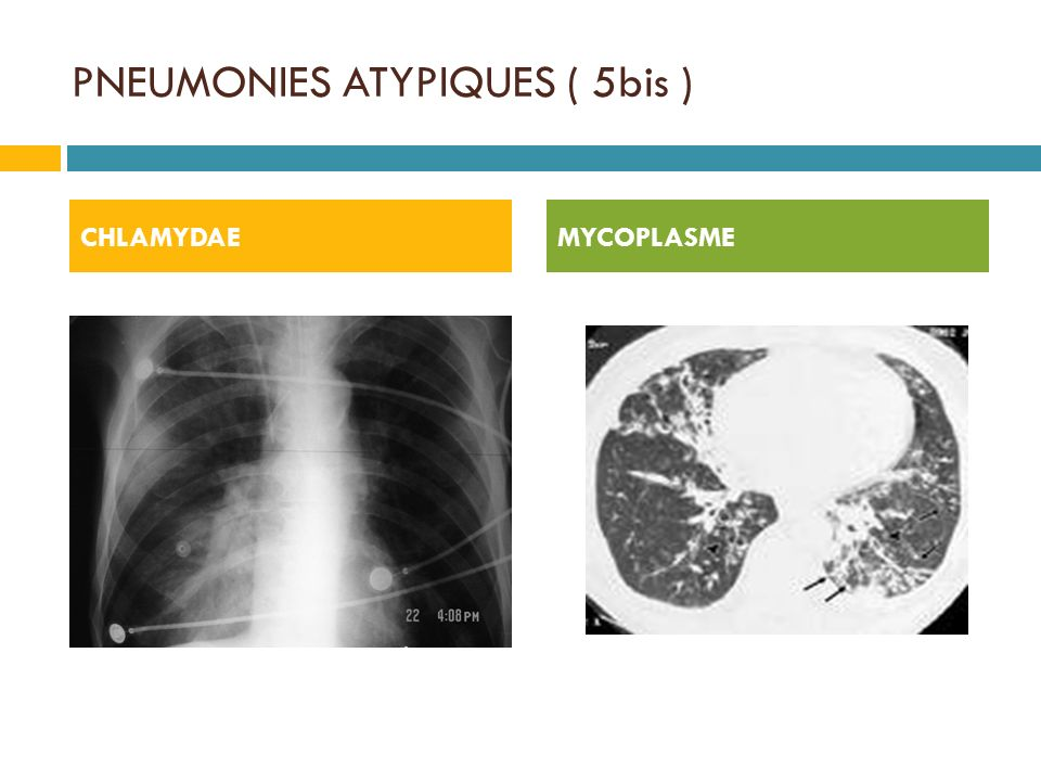 PNEUMONIES ATYPIQUES ( 5bis )