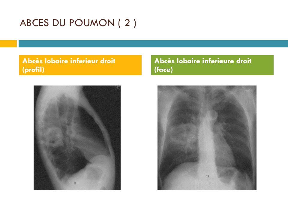ABCES DU POUMON ( 2 ) Abcès lobaire inferieur droit (profil)