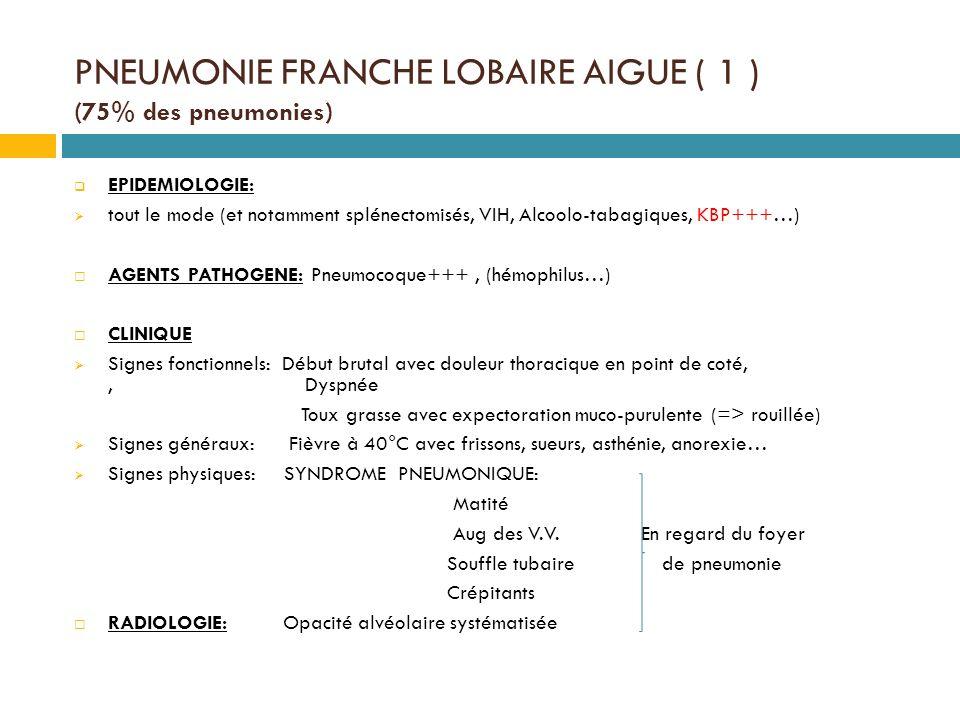 PNEUMONIE FRANCHE LOBAIRE AIGUE ( 1 ) (75% des pneumonies)