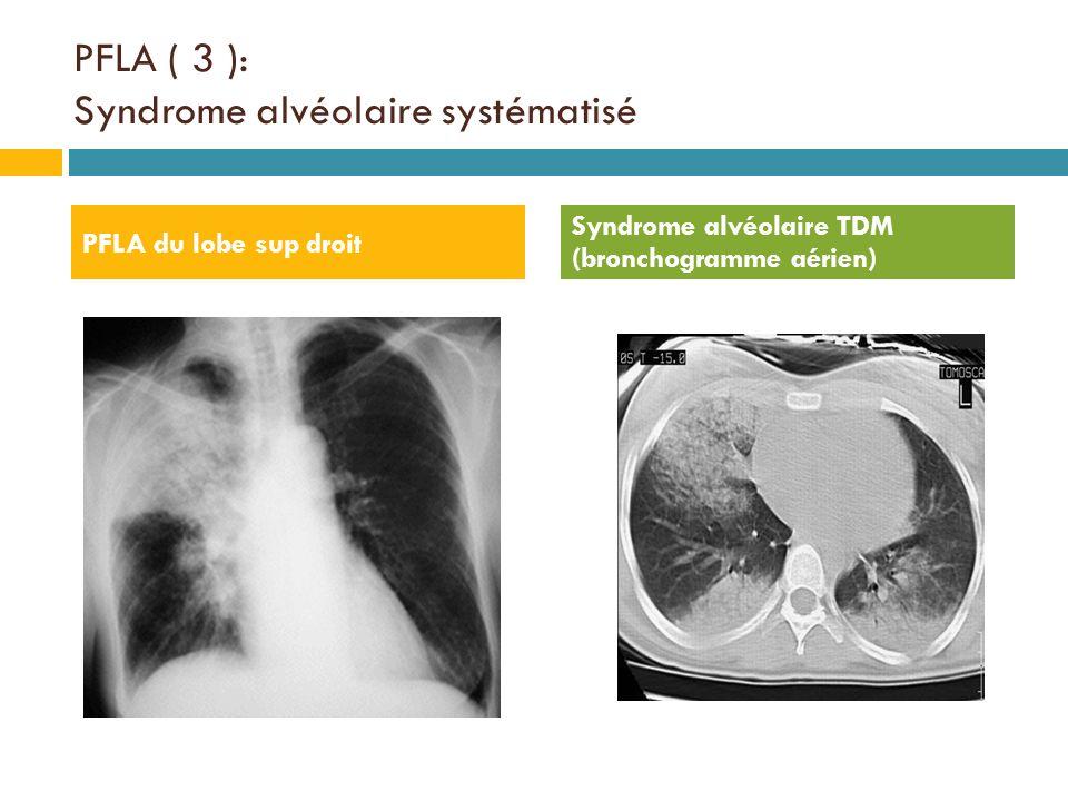 PFLA ( 3 ): Syndrome alvéolaire systématisé