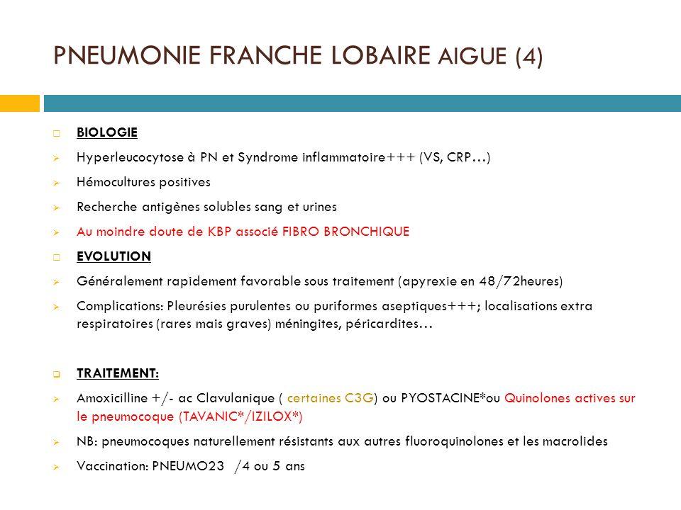 PNEUMONIE FRANCHE LOBAIRE AIGUE (4)