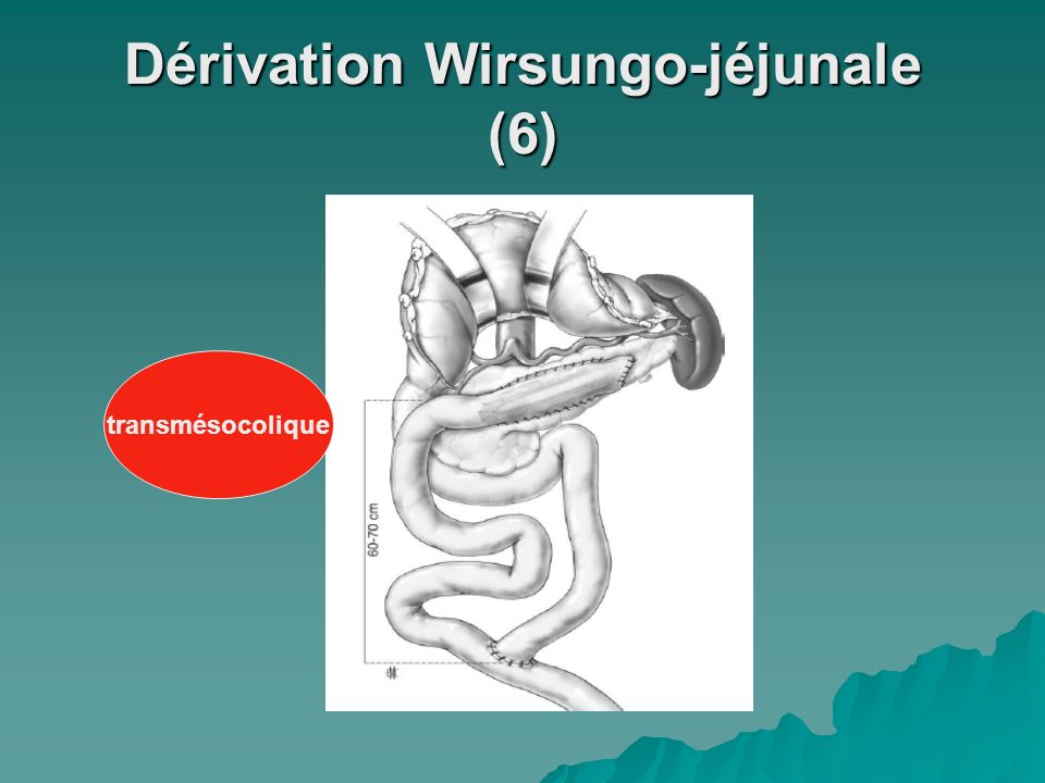 Dérivation Wirsungo-jéjunale (6)