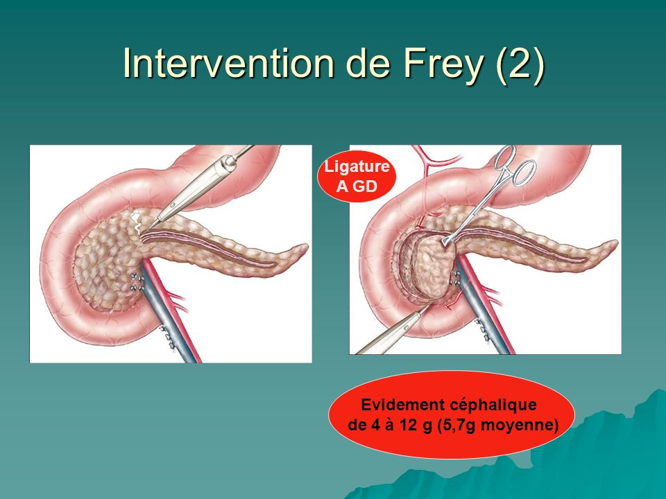 Intervention de Frey (2)