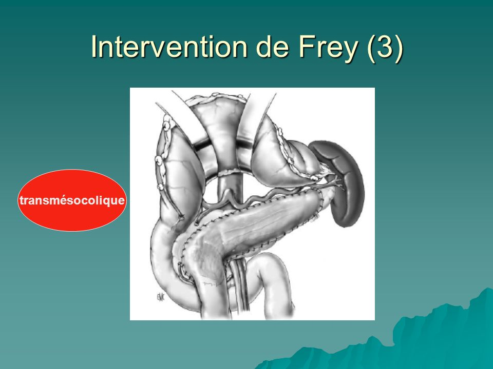 Intervention de Frey (3)