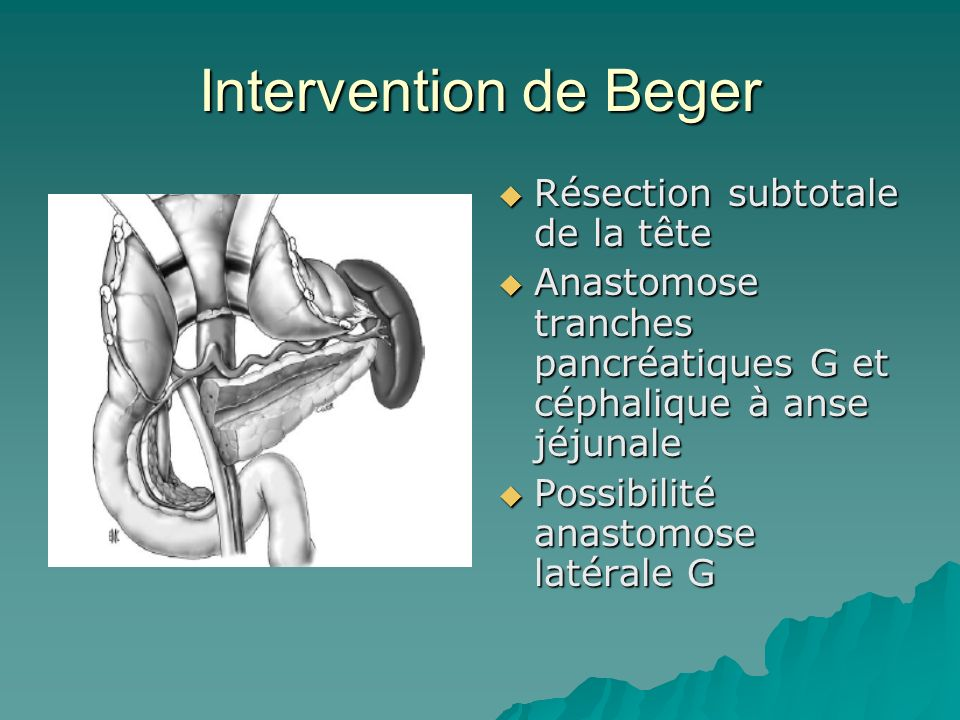 Intervention de Beger Résection subtotale de la tête