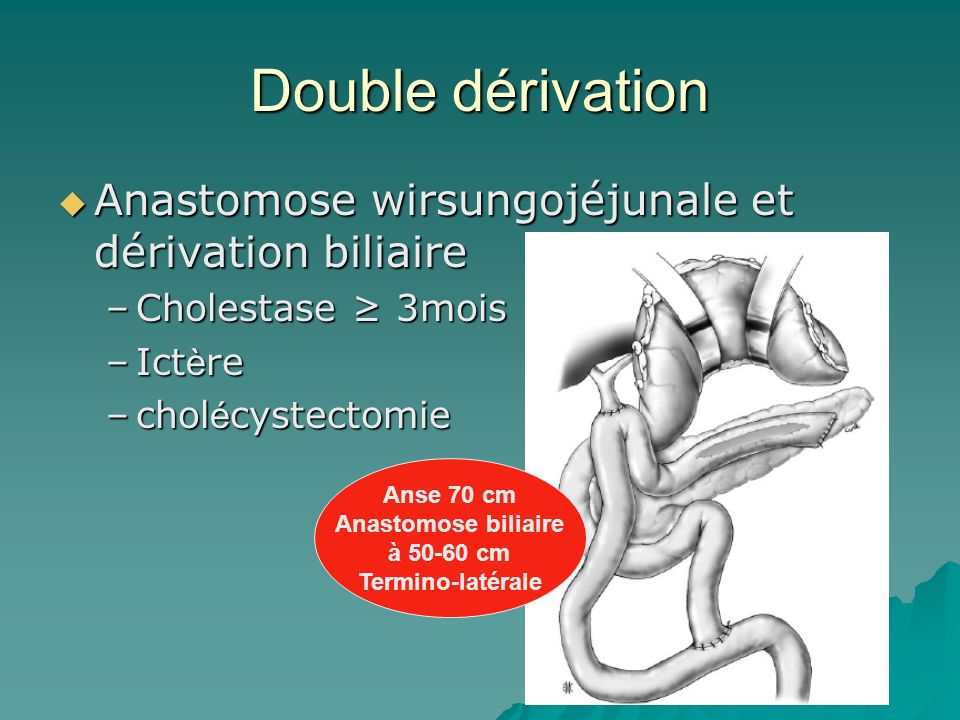 Double dérivation Anastomose wirsungojéjunale et dérivation biliaire
