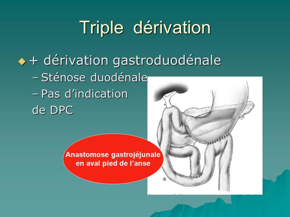 Anastomose gastrojéjunale