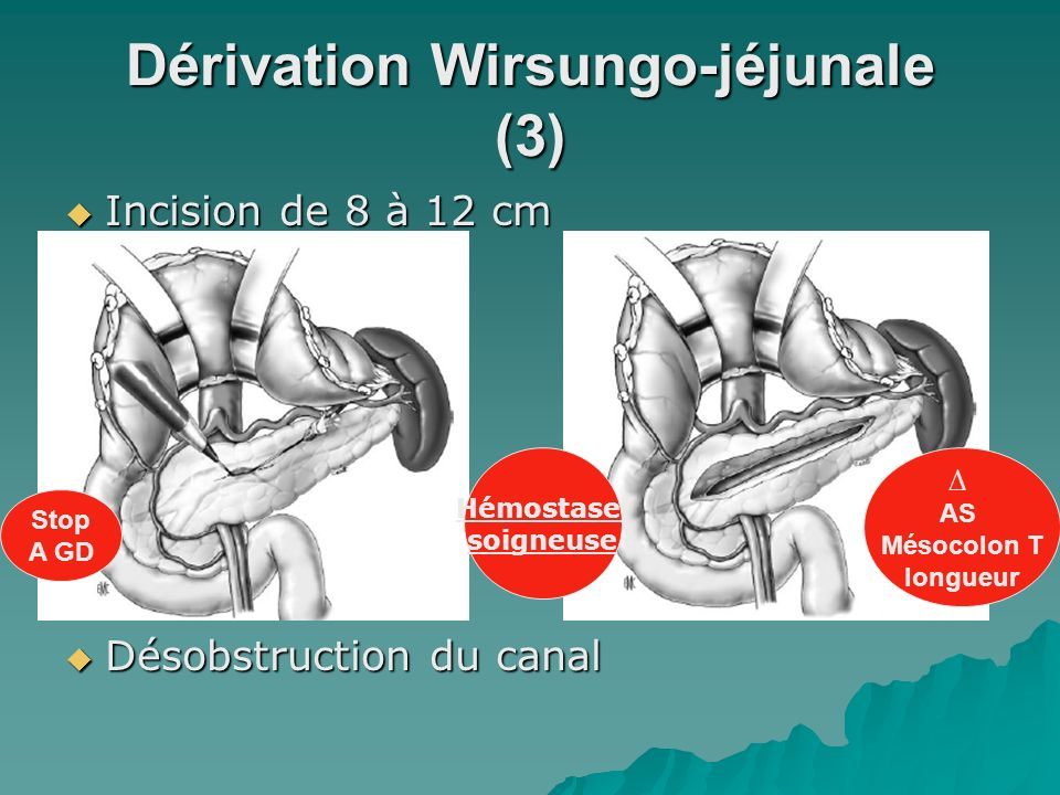Dérivation Wirsungo-jéjunale (3)