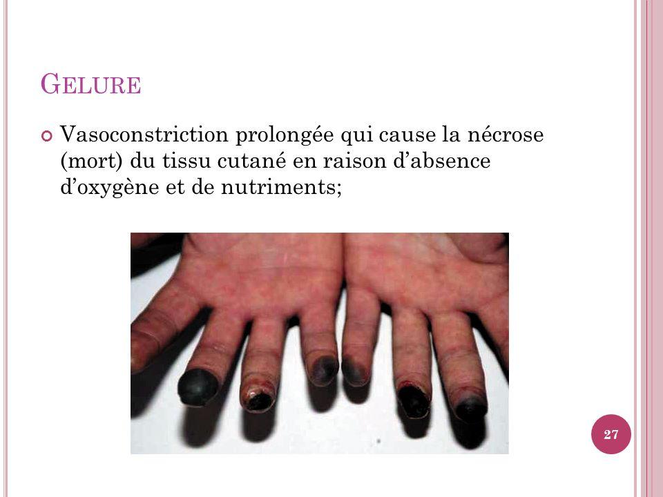 Gelure Vasoconstriction prolongée qui cause la nécrose (mort) du tissu cutané en raison d'absence d'oxygène et de nutriments;