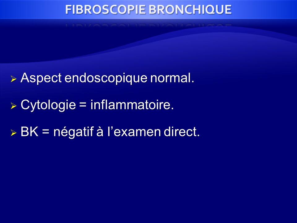Aspect endoscopique normal.
