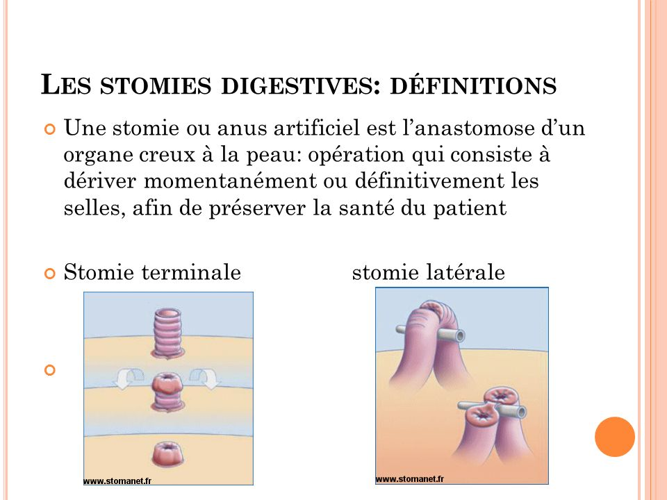 Les stomies digestives: définitions