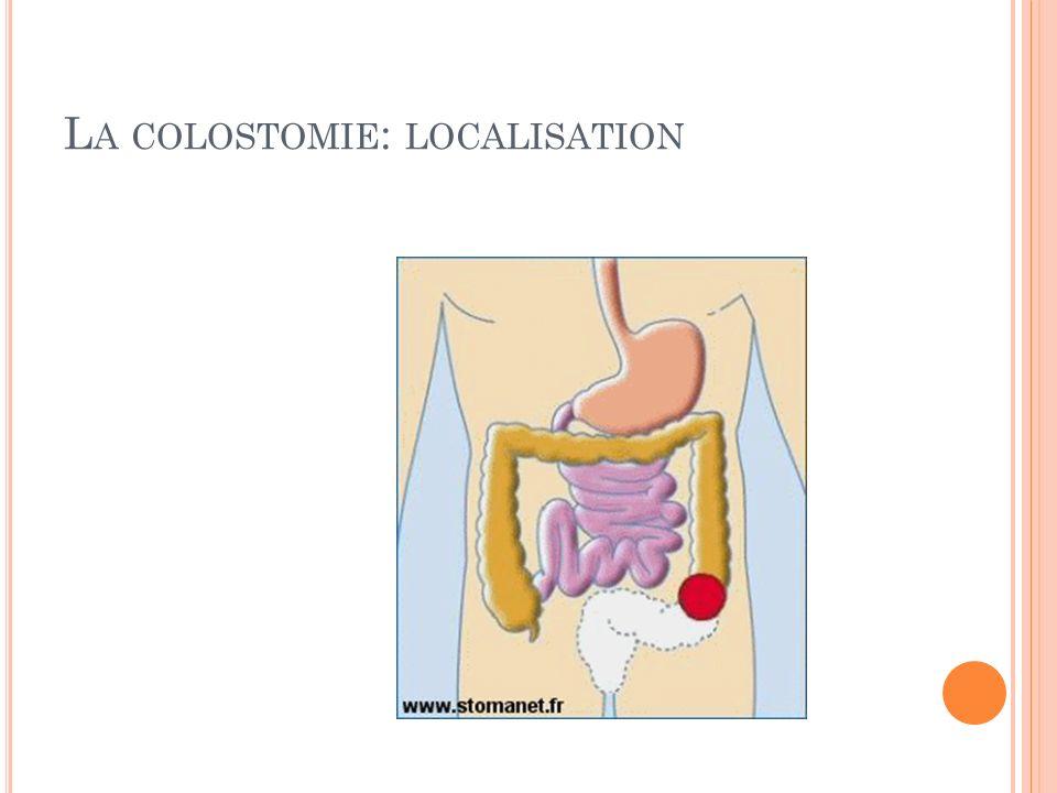 La colostomie: localisation