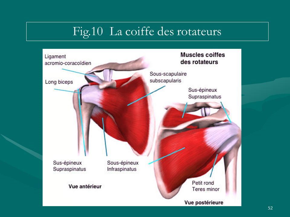 Fig.10 La coiffe des rotateurs