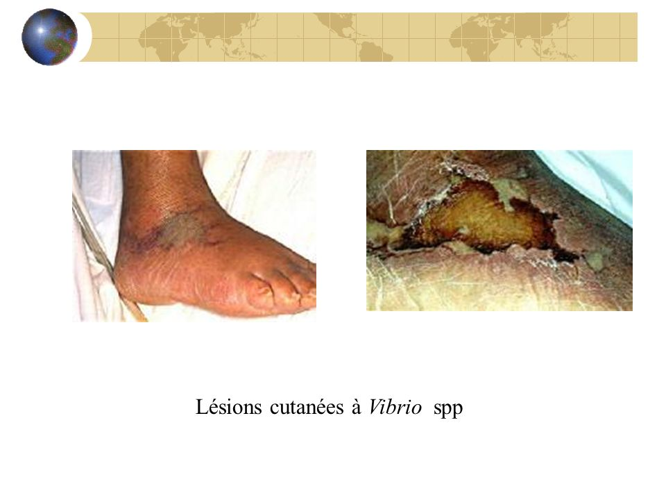Lésions cutanées à Vibrio spp