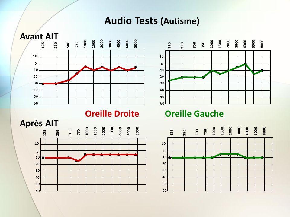 Audio Tests (Autisme) Avant AIT Oreille Droite Oreille Gauche