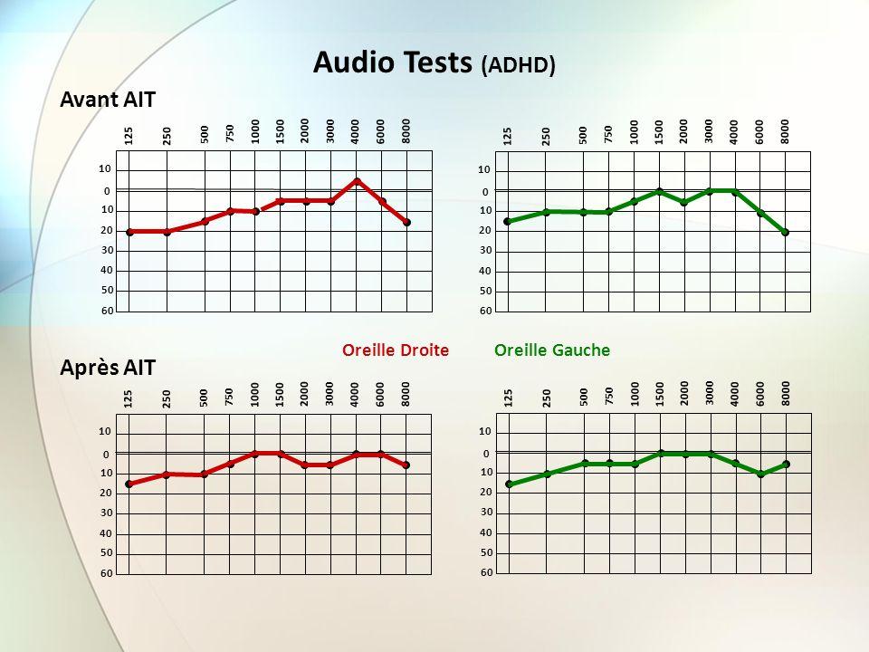 Audio Tests (ADHD) Avant AIT Après AIT Oreille Droite Oreille Gauche