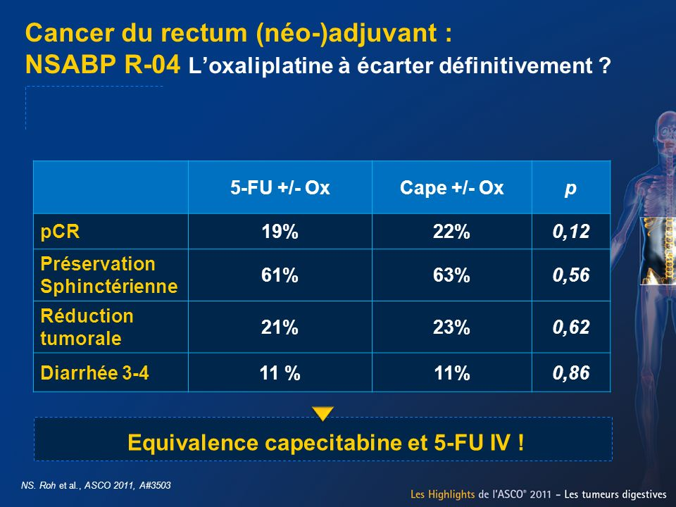 Equivalence capecitabine et 5-FU IV !