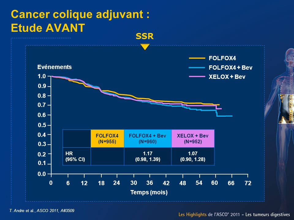 Cancer colique adjuvant : Etude AVANT