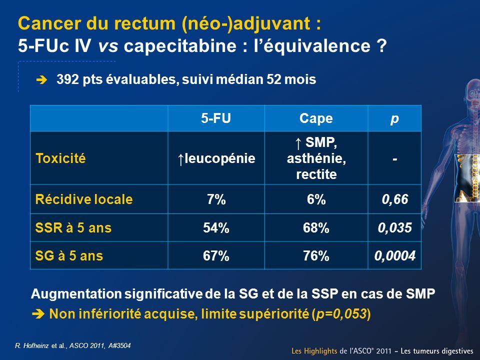 Cancer du rectum (néo-)adjuvant : 5-FUc IV vs capecitabine : l'équivalence