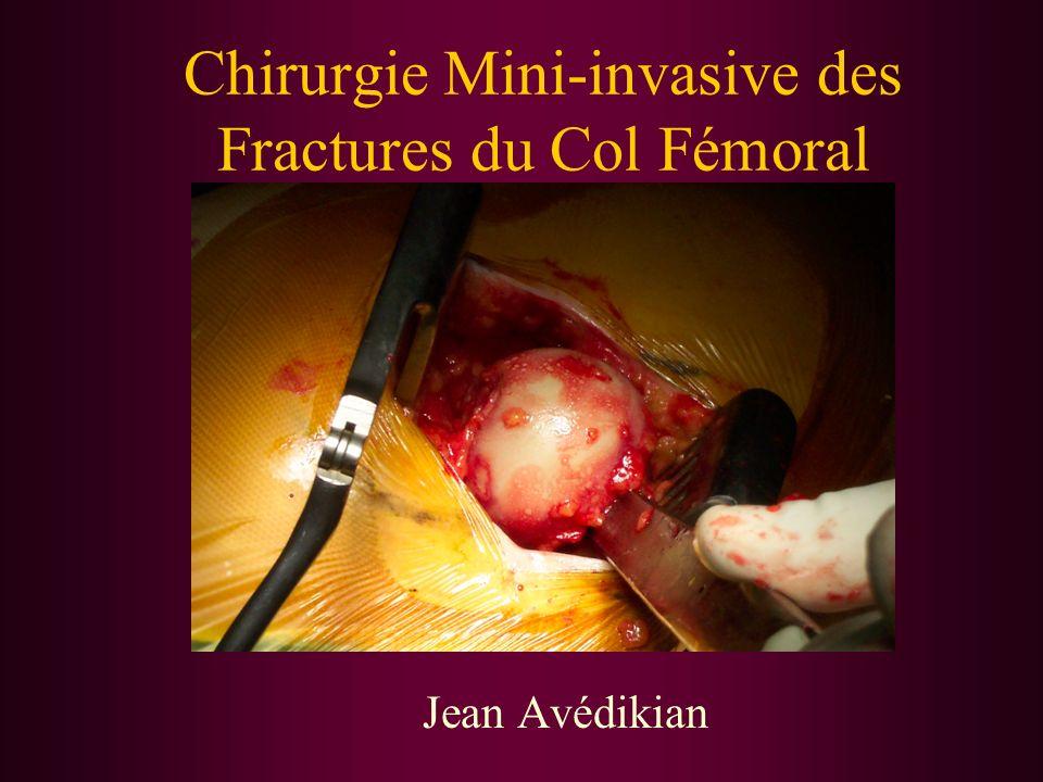 Chirurgie Mini-invasive des Fractures du Col Fémoral