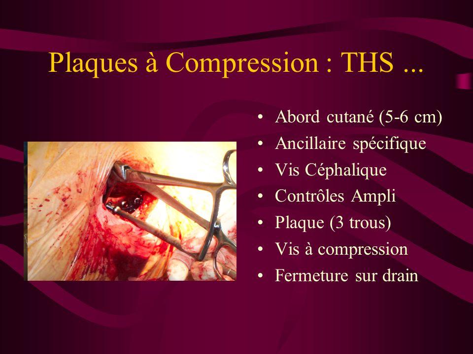 Plaques à Compression : THS ...
