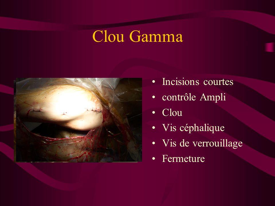 Clou Gamma Incisions courtes contrôle Ampli Clou Vis céphalique