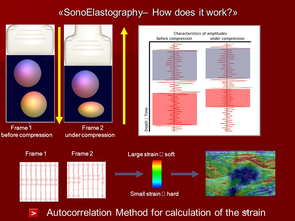 «SonoElastography– How does it work »