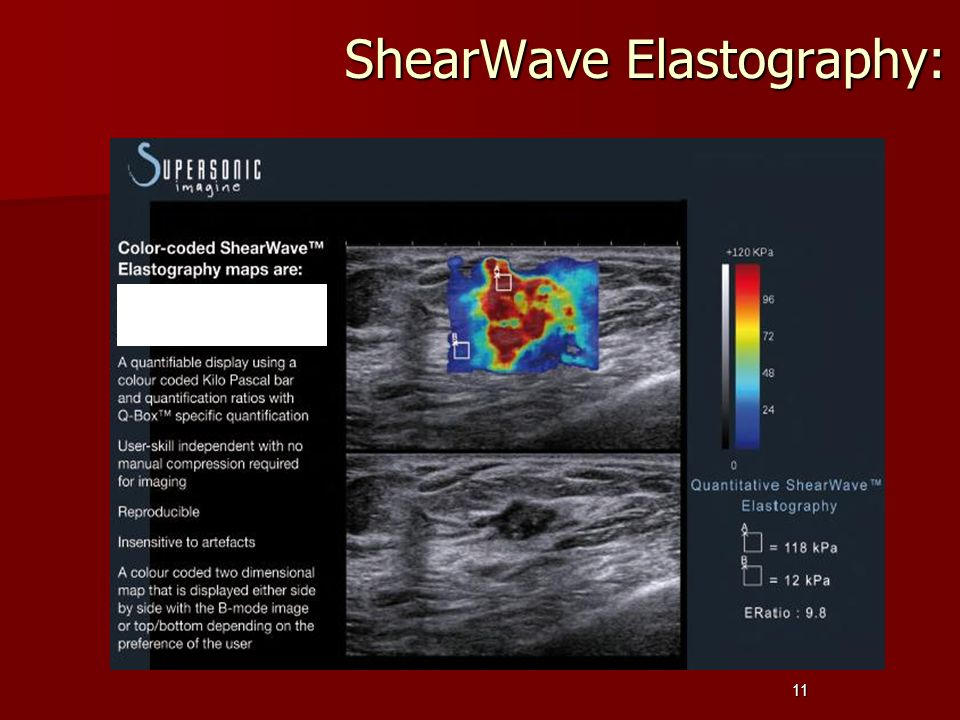 ShearWave Elastography:
