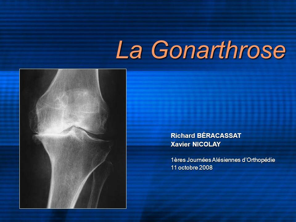 La Gonarthrose Richard BÉRACASSAT Xavier NICOLAY