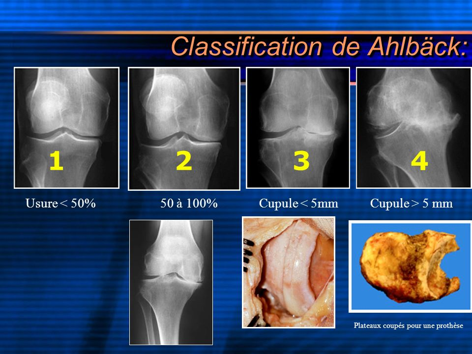 Classification de Ahlbäck: