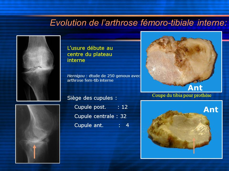 Evolution de l'arthrose fémoro-tibiale interne: