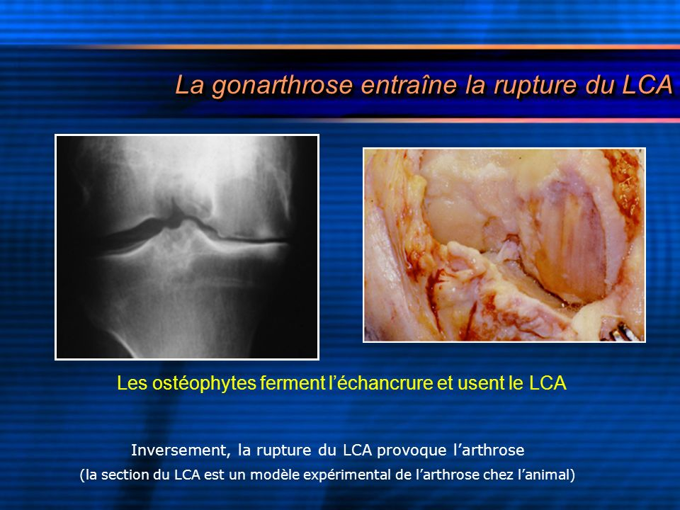 La gonarthrose entraîne la rupture du LCA