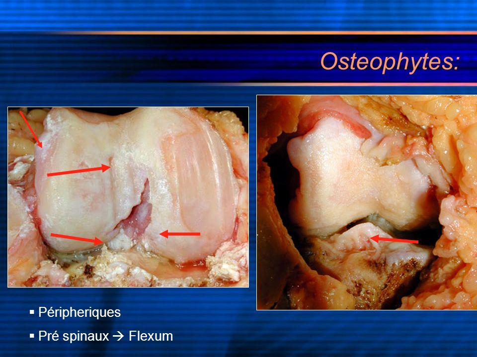 Osteophytes: Péripheriques Pré spinaux  Flexum