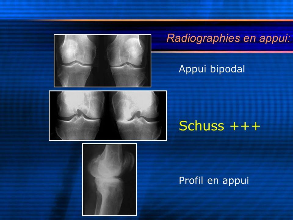 Radiographies en appui:
