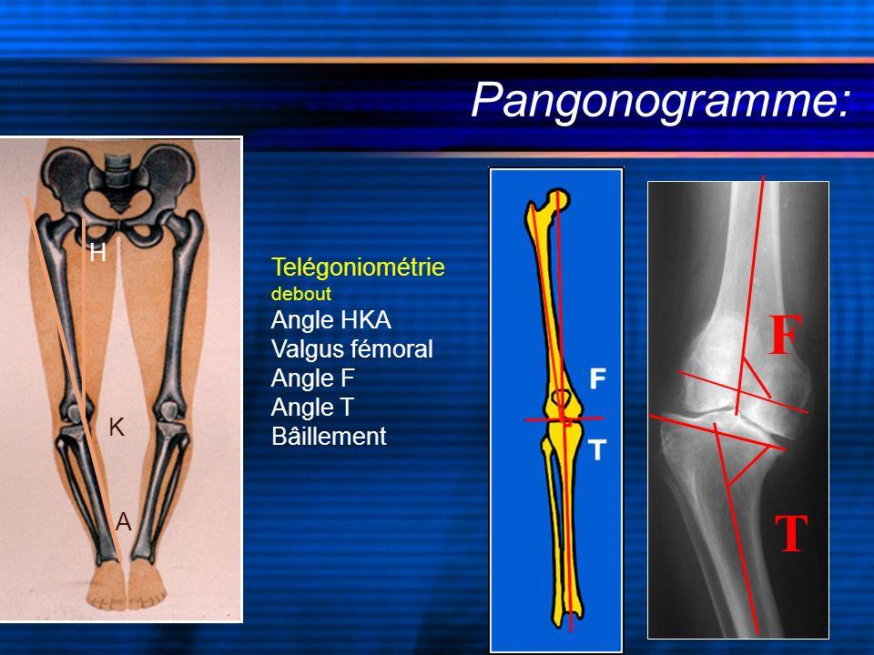 F T Pangonogramme: H Telégoniométrie debout Angle HKA Valgus fémoral